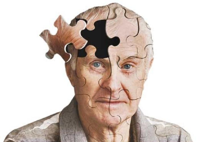 آنچه باید درباره آلزایمر بدانید