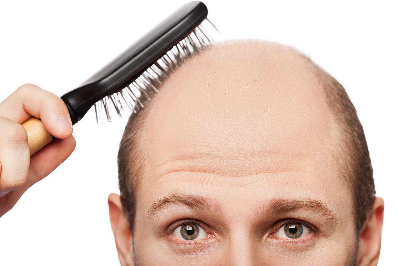 درمانهای ساده و خانگی برای مقابله با ریزش مو