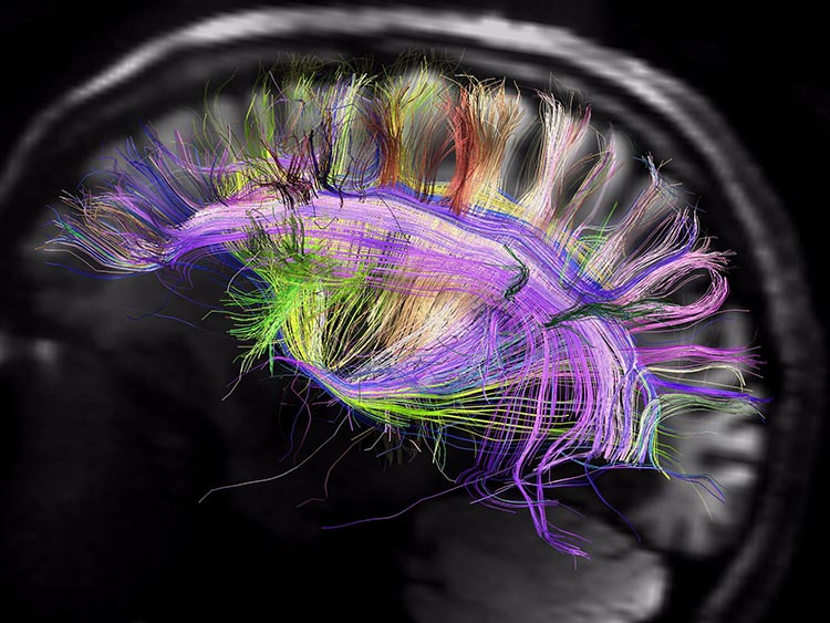 بهترین نقشه از مغز اکنون در دست دانشمندان