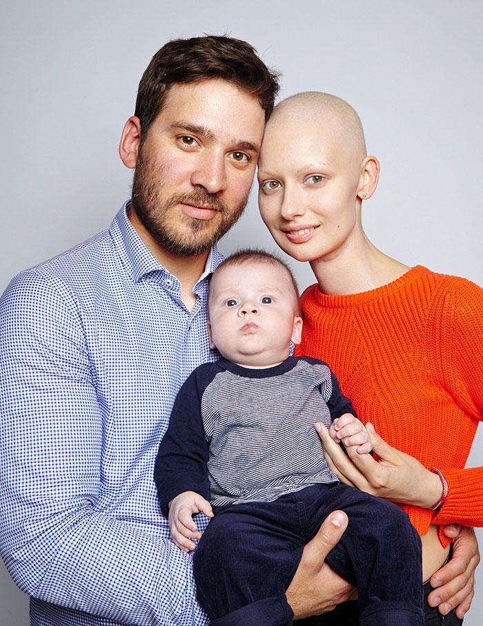 مادر و فرزندی که سرطان را شکست دادند(عکس)