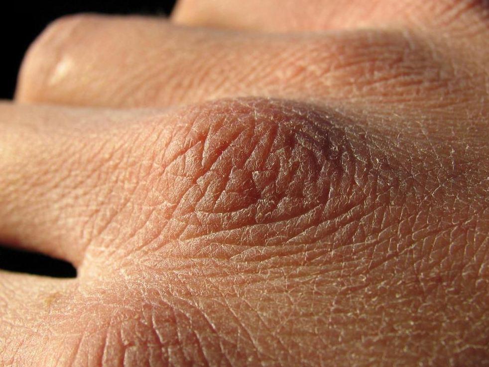 راهکارهایی برای جلوگیری از خشکی پوست در پاییز و زمستان